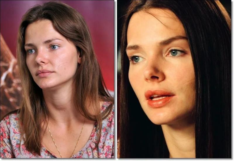 Как живут талантливые российские актеры, имеющие изъяны в своей внешности